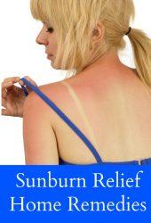 Sunburn Relief Home Remedies
